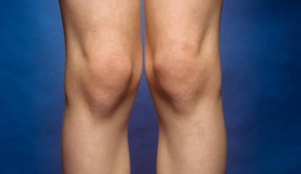 kolena knee